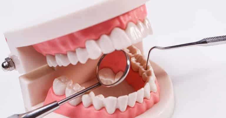 Zahnfleisch geht zurück - ist die elektrische Zahnbürste schuld daran?