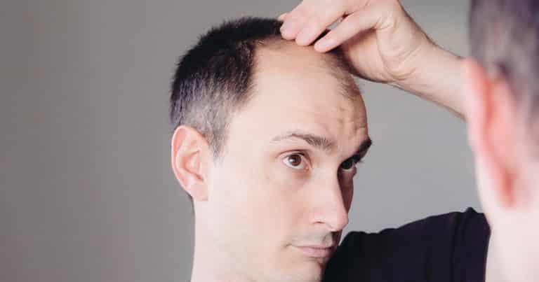 Alternativen zur Haartransplantation
